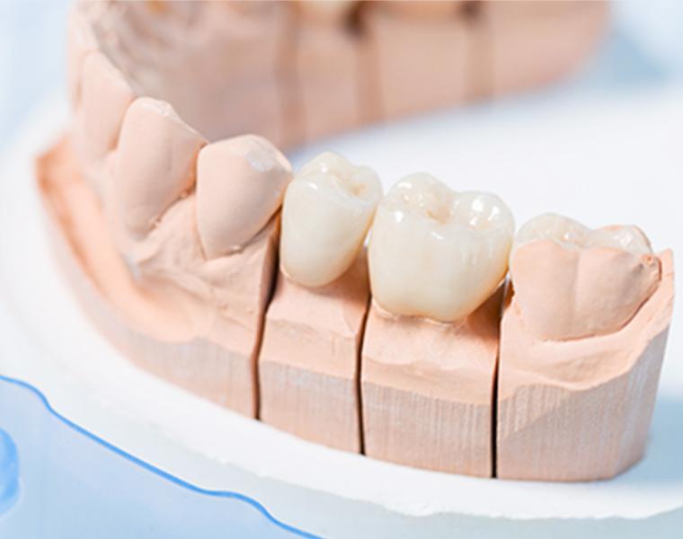 保存不可能な歯の抜歯